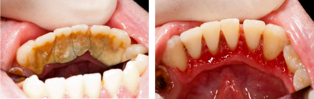 Ako odstrániť zubný kameň | MDDr. Andrea Hrubá | Zápisník zubárky