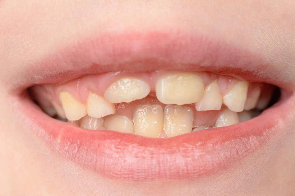 Krivé zuby | Krivé zuby u detí | Krivé predné zuby | MDDr. Andrea Hrubá | Zápisník zubárky
