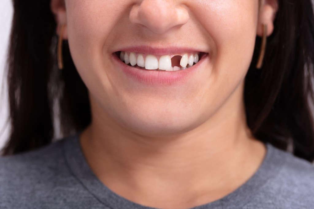 Tehotenstvo zuby   MDDr. Andrea Hrubá   Zápisník zubárky