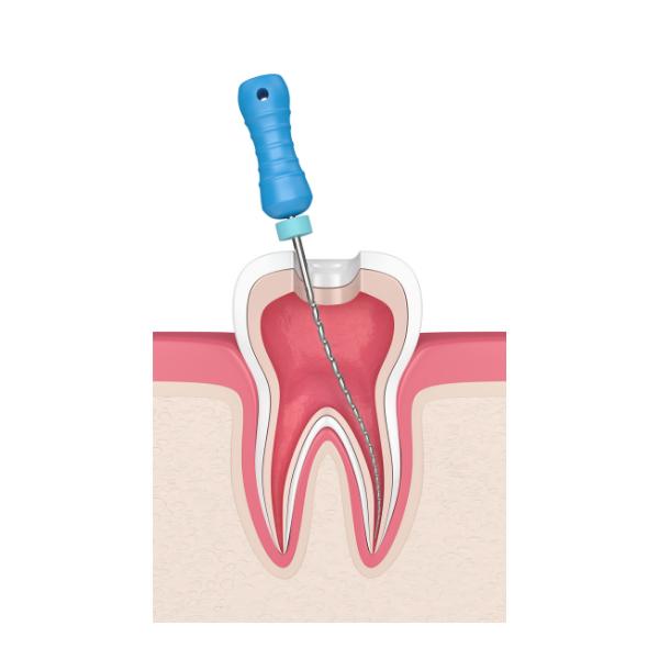 Endodoncia   Ošetrenie koreňových kanálikov   Vyberanie nervu zo zuba   MDDr. Andrea Hrubá   Zápisník zubárky
