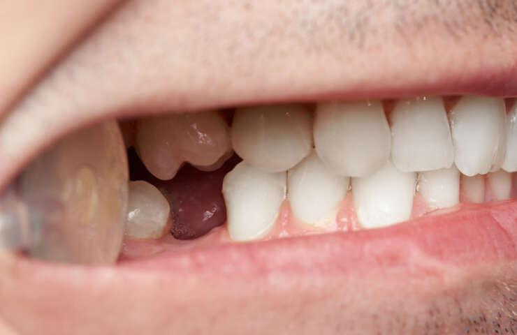 Ako nahradiť vytrhnutý zub?