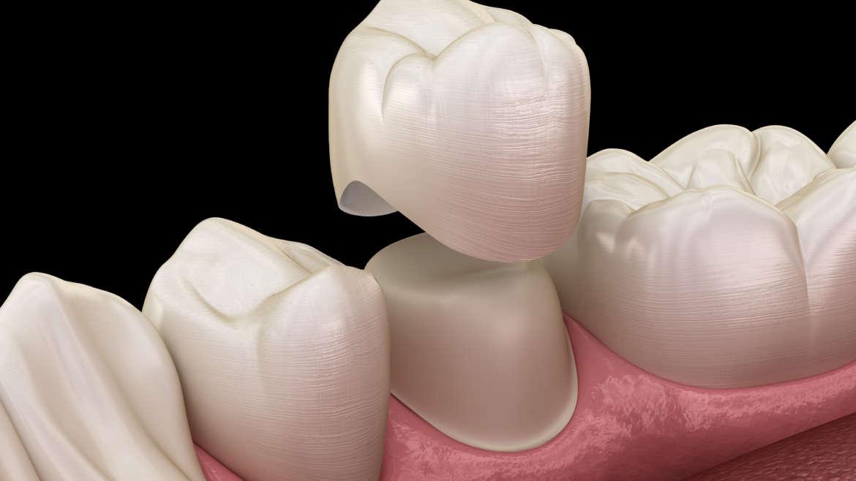 Zubné korunky: Všetko, čo potrebujete vedieť