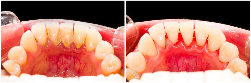Domáci ultrazvuk na zuby | MDDr. Andrea Hrubá | Zápisník zubárky