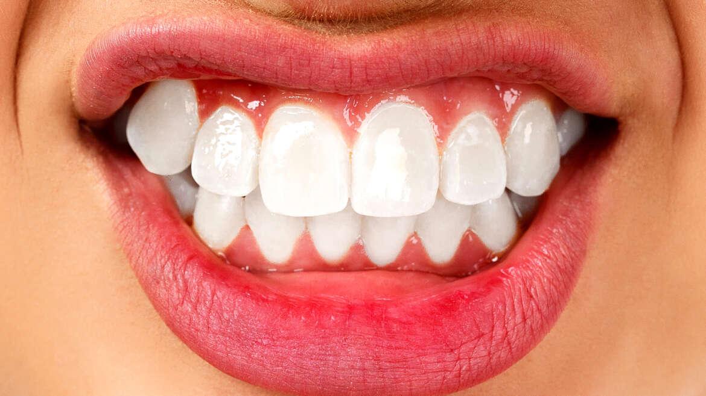 Škrípanie zubami: Ako to riešiť a odstrániť?