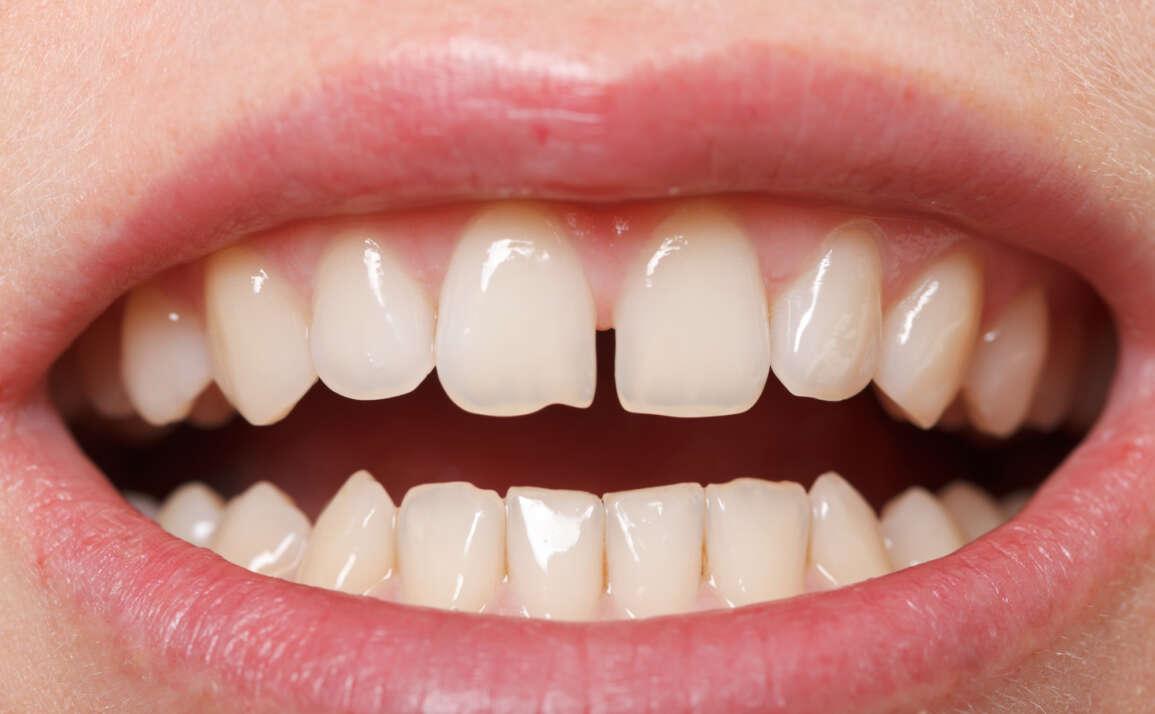 Medzera medzi prednými zubami