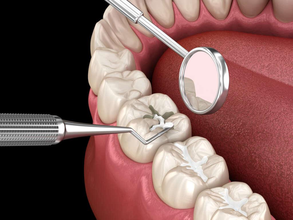 Pečatenie mliečnych zubov u detí | MDDr. Andrea Hrubá | Zápisník zubárky